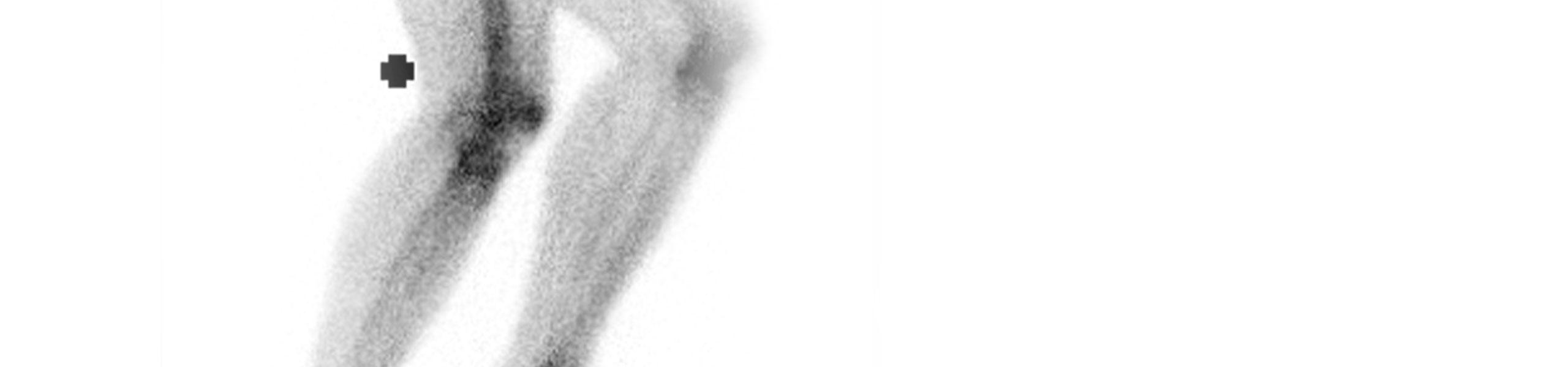 sportopaedie heidelberg radiologie sinzigraphie header