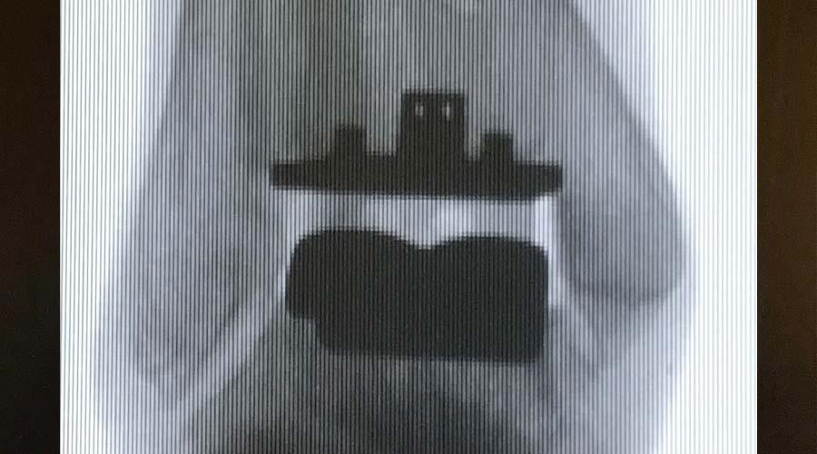 sprunggelenk prothese sportopaedie 3