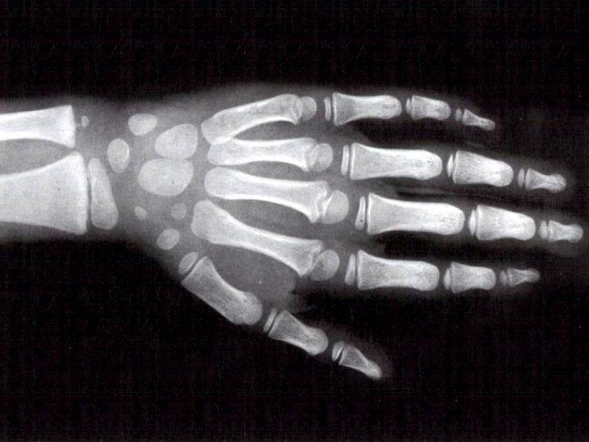 skelettalter radiologie sportopaedie heidelberg behandlungsspektrum uebersicht d