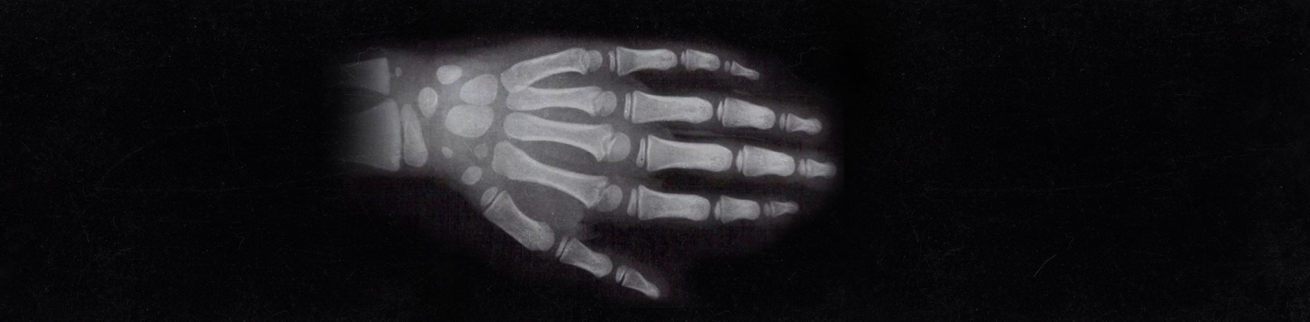sportopaedie heidelberg radiologie skelettbestimmung header d